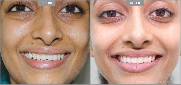 Smile Makeover Cost In Mumbai | Smiles Designing In Pune, India