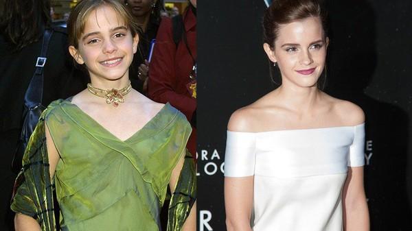 Les photos des acteurs de Harry Potter Avant/Après. Neville a tellement changé! - ViPoVi
