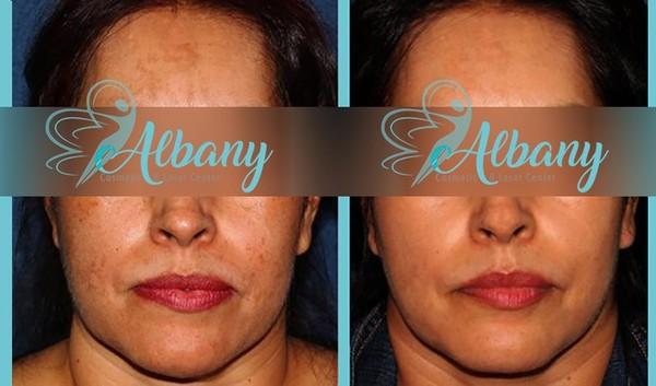 Tattoo and Pigmentation Removal - Albanylaser