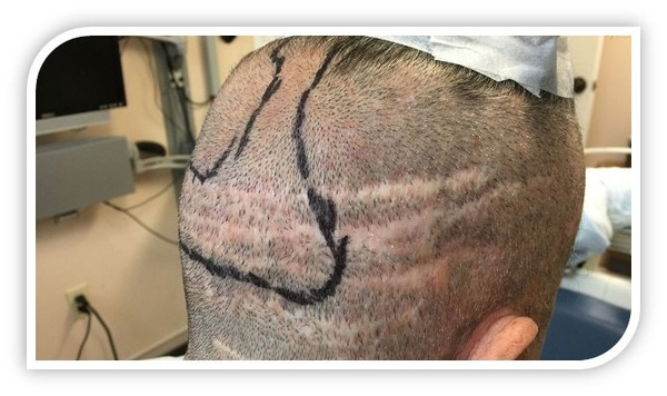 Hair transplant palo alto: When Should Men Consider Getting a Hair Transplant?