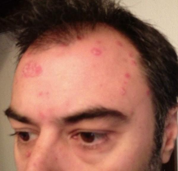 Hoe ik van mijin psoriasis werd verlost zonder Gevaarlijke Handelingen 'natuurlijk'