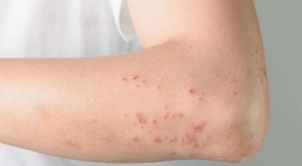 Histoplasmosis: Causes, Symptoms & Treatment ~ Health