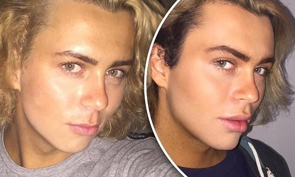 Kurt Coleman, 18, reveals newly enhanced jawline and chin