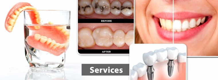 Best Dentist In Hinjewadi Pune