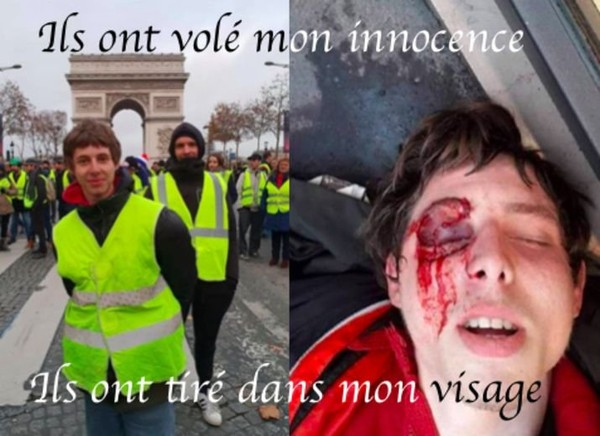 Je m'appel Franck, j'ai 19 et j'ai été défiguré par les forces de l'ordre - Leetchi.com
