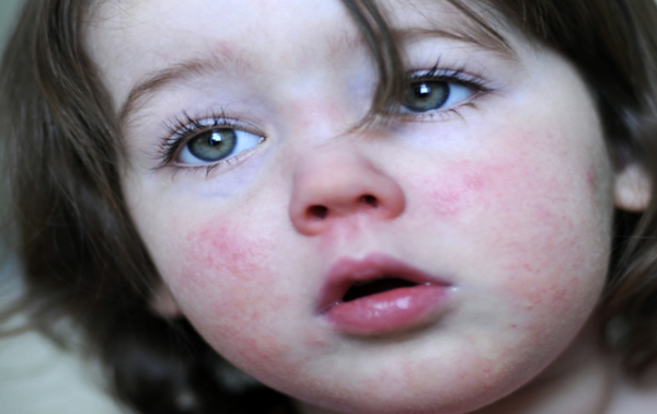 Fifth Disease: Causes, Symptoms & Treatment ~ Health